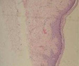 Biopsia de piel: dorso de mano derecha: epidermis normal con fibras de colágeno de características y distribución normal, algunas telangiectasias en dermis superficial.