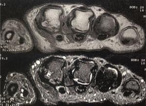 Imágenes axiales de RM ponderadas en T1 y en supresión de grasa en la que se visualiza líquido intraarticular de las metacarpofalángicas del segundo y tercer dedos. Hay edema óseo y erosión en aspecto radial de la cabeza del segundo metacarpiano.