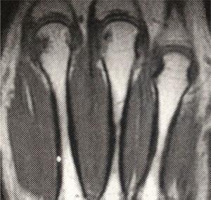 Imagen coronal ponderada en T1 en la que se evidencia erosión en la cabeza del segundo metacarpiano.
