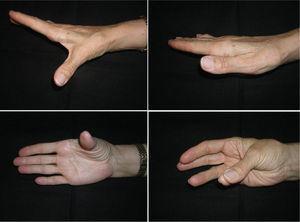 La misma paciente con buenos arcos de movilidad en flexión-extensión y de abducción-aducción, con estabilidad de la articulación y sin dolor.