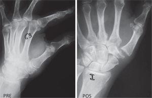 Paciente femenina de 63 años con artrosis trapecio-metacarpiana izquierda. Izquierda: radiografía preoperatoria; derecha: radiografía posoperatoria a los 14 meses de resección parcial de trapecio y variante de tendosuspensión. No hay colapso y se mantiene un buen espacio con buena estabilidad.