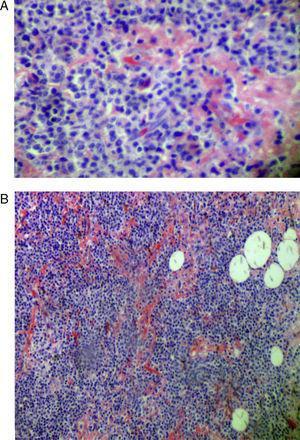 A) Acúmulos de material amiloide en ganglio linfático. Microscopia óptica, tinción rojo Congo 10 ×. B) Pérdida de la arquitectura normal del tejido linfoide. Microscopia óptica, tinción rojo Congo 4 ×.
