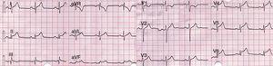EKG de 12 derivaciones. Supradesnivel cóncavo del ST en cara inferior y lateral. Supradesnivel del PR en aVR.