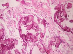 Microlitos alveolares.