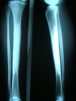 Radiografía AP y lateral de tibia y peroné que muestran gran fenómeno esclerótico en diáfisis en ambos huesos de manera simétrica.