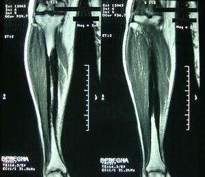 RNM de pierna derecha con corte coronal en T2 donde se aprecia lesión hipointensa en la región diafisiaria de la tibia que respeta la cortical.