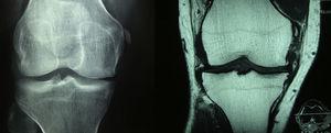 A la izquierda en la radiografía AP de rodillas se observa calcificación del ligamento colateral medial en su parte proximal, además de disminución del espacio femorotibial medial. A la derecha en la adquisición coronal con información T1 de la rodilla se hace evidente una osificación en el extremo proximal del ligamento colateral medial, en relación con una lesión antigua, configurando una lesión de Pellegrini-Stieda. Se observan además cambios artrósicos por formación de osteofitos marginales en el compartimento medial.