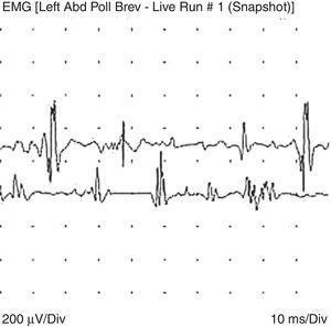 Análisis de unidades motoras que demuestra polineuropatía axonal motora (trazo superior); aumento de actividad insercional y potenciales polifásicos de corta duración (cambios miopáticos; trazo inferior).