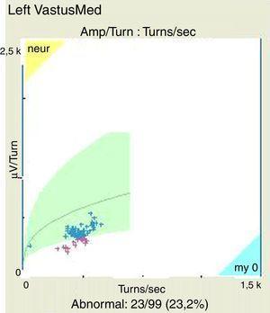 Análisis automático de patrón de interferencia compatible con miopatía inflamatoria en vasto medial izquierdo.