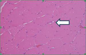 Presencia de células de aspecto linfoide endomisiales (flecha). Coloración hematoxilina-eosina. Aumento 40X.