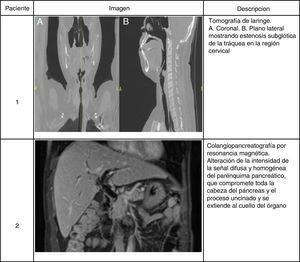 Hallazgos imagenológicos en 2 pacientes con enfermedad relacionada con IgG4. Paciente 1. Tomografía de laringe. A) Plano coronal. B) Plano lateral que muestra estenosis subglótica de la tráquea en la región cervical. Paciente 2. Colangiopancreatografía por resonancia magnética. Alteración de la intensidad de la señal difusa y homogénea del parénquima pancreático que compromete toda la cabeza del páncreas y el proceso uncinado y se extiende al cuello del órgano.