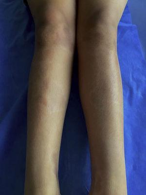 Lesiones crónicas de esclerodermia linear en extremidades inferiores.