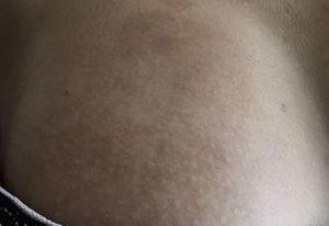 Cambios agudos de la esclerodermia. Lesión en tórax anterior con evidencia de eritema y cambios en la coloración de la piel sin induración.