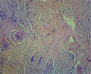 Fibrosis concéntrica densa y células inflamatorias mixtas (aumento a 20 X&#59; tinción con hematoxilina y eosina).