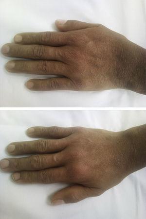 Fotografía de manos. Se observa sinovitis de las articulaciones metacarpofalángicas 2 y 3 e interfalángica proximal 2 a 5 bilateral.