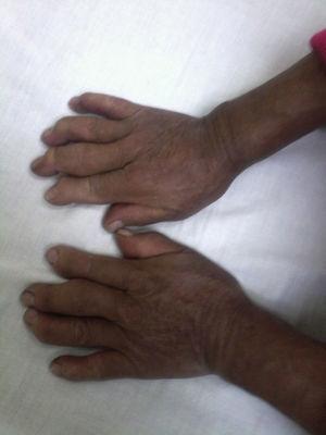 Tumefacción de articulaciones metacarpofalángicas e interfalángicas proximales, desviación cubital de los dedos, deformidad en flexión de interfalángicas distales. Fuente: autores.