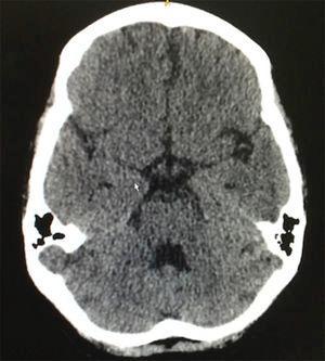 Tomografía cerebral simple, con ligeros cambios de microangiopatía y sin evidencia de lesiones ocupantes de espacio.