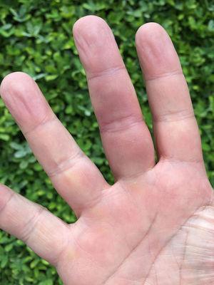 Compromiso del dedo medio de la mano derecha.