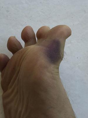 Lesión en pie derecho.