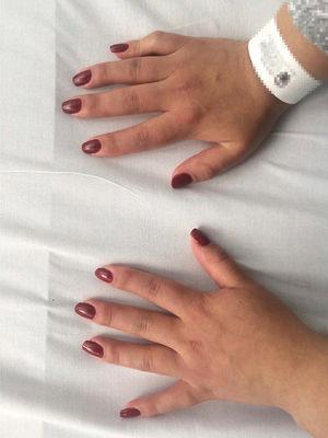 Foto de las manos del paciente en las que se evidencia sinovitis de interfalángicas proximales, metacrapofalángicas y muñeca izquierda.