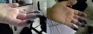 Lesiones isquémicas de las falanges distales del tercer, cuarto y quinto dedos de la mano izquierda.