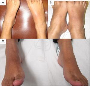 A y B) Vista AP del pie derecho en la cual se aprecia un aumento de volumen en el tarso y el tobillo, eritema en tarso derecho. C) Vista AP posterior a la infiltración de dexametasona intraarticular.