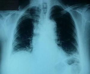 Radiografía de tórax que muestra opacidades intersticiales reticulares de distribución en los lóbulos inferiores y subpleurales.