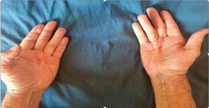 CD bilateral, banda fibrosa a nivel del cuarto metacarpiano.