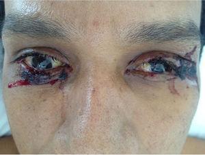 Paciente con conjuntivitis no supurativa bilateral.
