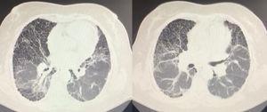 TACAR. Tractos fibrosos y áreas de panalización de predominio basal.