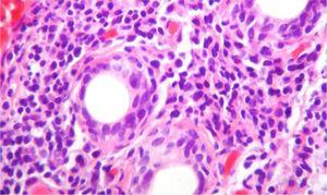 Biopsia de la glándula salival con tinción de H & E, 40×. Se observa un denso infiltrado inflamatorio linfoplasmocitario alrededor de los conductos, más de 5focos de 50células periductales inflamatorias, que son compatibles con el síndrome de Sjögren (escala Score 4.2 de Chisholm y Masson modificada por Daniel y Whitcher).