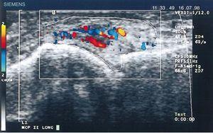 Ecografía longitudinal de articulación metacarpofalángica donde se muestran las primeras imágenes de Doppler con aumento de la vascularización del pannus en un paciente con AR70.