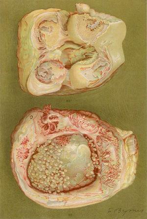 Dibujo de la autopsia de una mujer de 40 años con clínica de poliartritis de grandes y pequeñas articulaciones que produjeron gran discapacidad y anquilosis. Se evidencia la pérdida del cartílago articular y de zonas de formación ósea que causan la anquilosis de la rodilla5,6.
