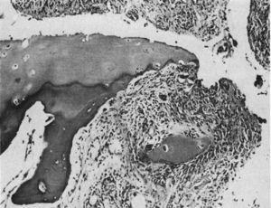 Histología con microscopia de luz. Lesión destructiva en el margen de la articulación interfalángica. Se ve el tejido sinovial o pannus junto con el tejido de granulación, en lo que se denominó movimiento de pinza, y que aísla un fragmento de cartílago, señalado como «C»9.