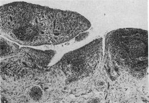 Histología con microscopía de luz. Clásica sinovitis de rodilla en AR que muestra hipertrofia vellosa, infiltración vascular y nódulos linfoides con un centro germinal en el extremo derecho9.