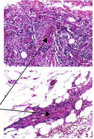 Histopatología.