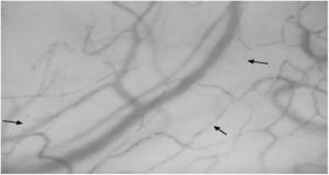Sublingual microcirculatory imaging by Sidestream dark-field (SDF) in a patient with systemic sclerosis. Arrows depicts stopped and intermittent blood flow in vessels <20μm of diameter.