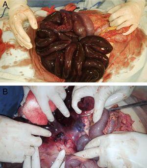 Hallazgos macroscópicos intraoperatorios de la paciente, donde se observa necrosis de intestino delgado (A) y formación de trombo en la vasculatura mesentérica (B).