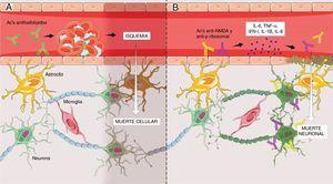 A) Mecanismo vascular no inflamatorio mediado por anticuerpos antifosfolípidos que llevan a la formación de microtrombos a nivel cerebral con posterior isquemia y muerte celular del segmento involucrado. Este mecanismo explica principalmente las manifestaciones focales del NPSLE. B)Mecanismo autoinmune inflamatorio mediado por anticuerpos, principalmente anti-NMDA y anti-Pribosomales, que promueven liberación de citoquinas proinflamatorias que ocasionarán disrupción del endotelio de la barrera hematoencefálica y posterior paso de dichos anticuerpos al parénquima cerebral, que finalmente llevarán a la apoptosis neuronal. Este mecanismo explica las manifestaciones difusas del NPSLE. Figura desarrollada por Lady J. Ríos-Serna.