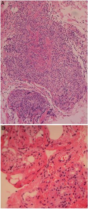A) Fotomicrografía de músculo recto superior a mediano aumento que muestra un denso infiltrado inflamatorio mezclado con fascículos de músculo liso (H&E, amplificación original ×20). B) Fotomicrografía de glándula lagrimal mayor a gran aumento que muestra escasos acinos y algunos haces de músculo liso «músculo de Müller» (H&E, amplificación original ×40).