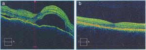 a) La imagen de la OCT macular del OD diagnóstica permite observar el neuroepitelio con superficie irregular, pliegues retinianos en la membrana limitante interna, pérdida de la depresión foveal con aumento generalizado del espesor macular. También se observan múltiples desprendimientos serosos del neuroepitelio con acúmulo de fluido subretinal, imágenes que confirman la enfermedad de Vogt Koyanagi Harada. b) En la OCT macular del OD tomada 6 meses después de iniciado el tratamiento, se aprecia claramente resolución de los desprendimientos retinianos y el complejo EPR-membrana de Bruch-coriocapilares sin alteraciones. La coroides se muestra con patrón y grosor de apariencia normal.