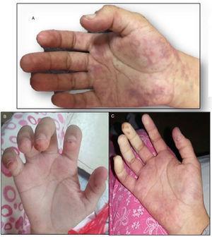 Mano derecha. A) Livedo reticularis. B) Cambios tróficos en pulpejos de dedos. C) Disminución de la perfusión distal a predominio de la arteria cubital.