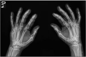 Se observa sinovitis en articulaciones interfalángicas proximales, sin dactilitis.