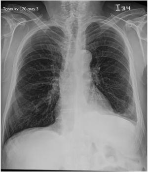 Proyección PA de tórax con signos sugestivos de crecimiento de cavidades cardíacas derechas y signos de hipertensión pulmonar precapilar, tronco de la arteria pulmonar prominente. Engrosamiento de la pleura diafragmática y costal inferior izquierda, escaso derrame pleural ipsilateral.