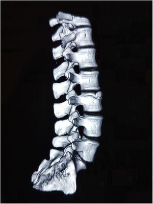 Tomografía axial computada de columna lumbar con reconstrucción 3D que señala una irregularidad ósea anterosuperior en L3 que no se separa de su cuerpo vertebral.