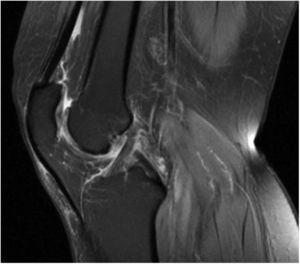 Condrocalcinosis artrósica de rodilla izquierda por RMN.
