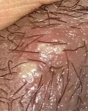 Úlcera genital en el labio mayor.