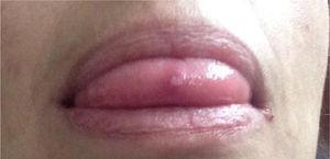 Úlcera lingual.