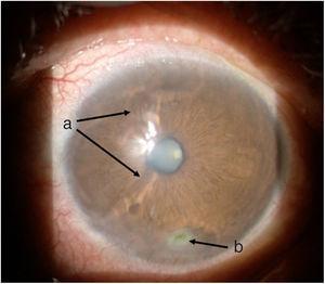 Ojo izquierdo, una semana posterior a inicio de tratamiento: a) Zona de derretimiento con mejoría de superficie corneal. b) Úlcera inferior de menor tamaño.