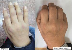 Puño antes y 14 días después del tratamiento inmunosupresor.